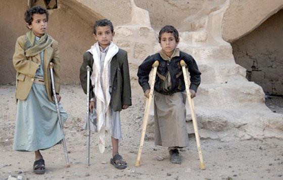 niños yemenies bombardeos