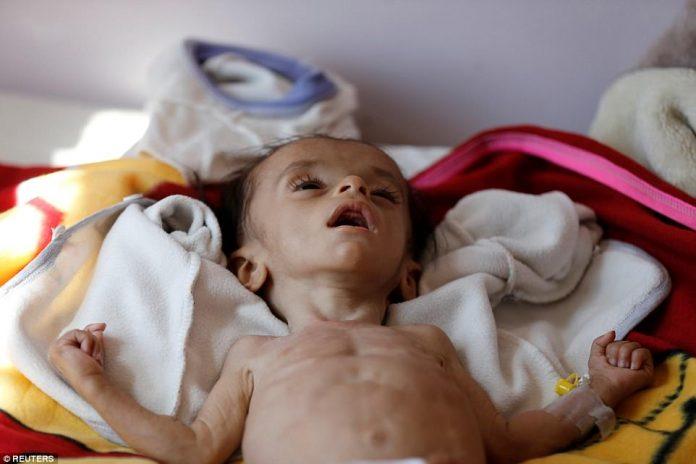 niños muertos yemen